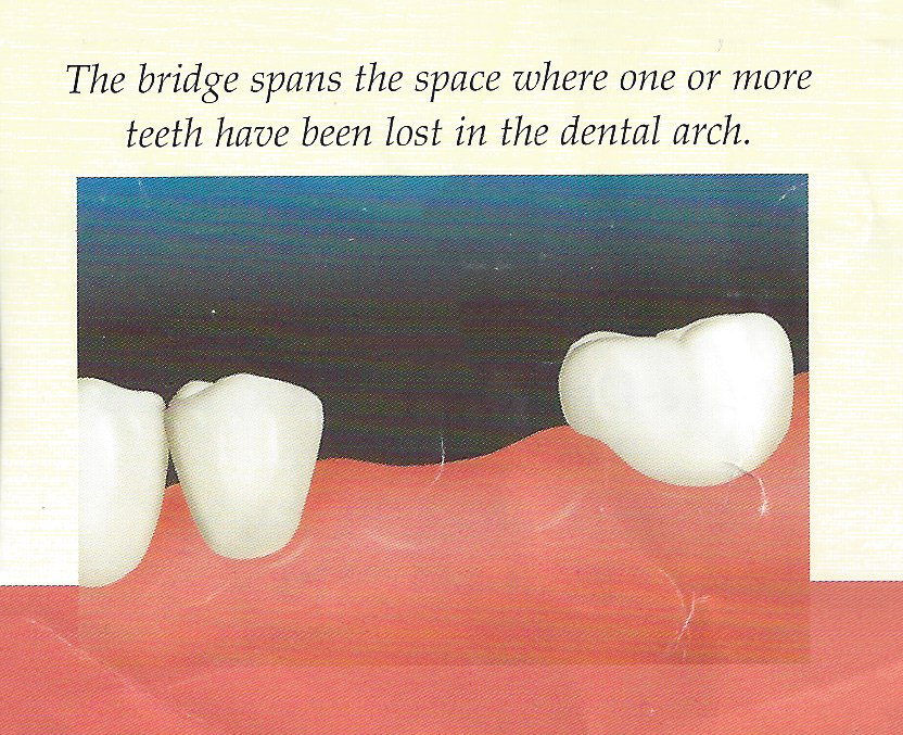 dental-bridges-img1-2